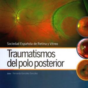 Traumatismos del polo posterior.jpg