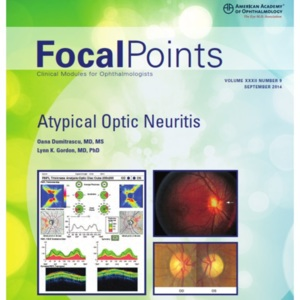 Focal Point 32-9 at optic neuritis.jpg