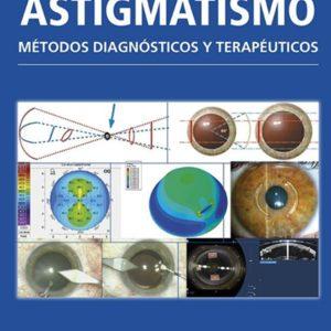 Astigmatismo metodos diagnosticos.jpg