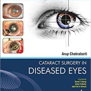 Cataract surgery in diseased eyes.jpg