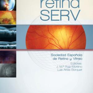 manual-retina-serv.jpg